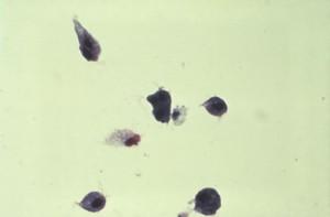Trichomonase
